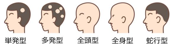 円形脱毛症の種類