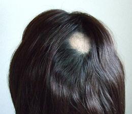通常型 円形脱毛症