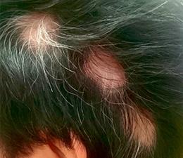蛇行型 円形脱毛症
